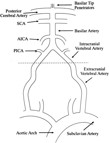 Posterior Circulation Large Artery Occlusive Disease And Embolism