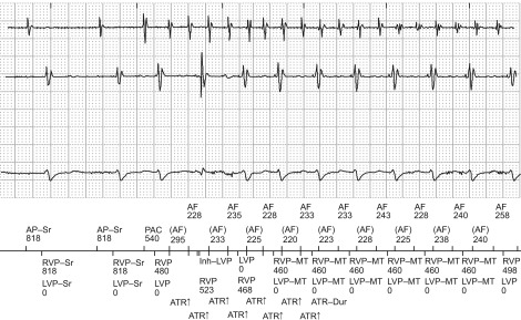 Ambulatory Electrocardiography (Holter) - an overview