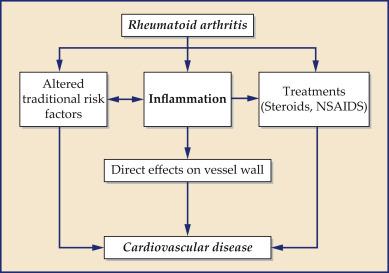 Rheumatoid Arthritis Sciencedirect