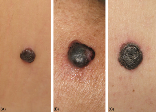 Diagnosis Of Primary Melanoma Sciencedirect