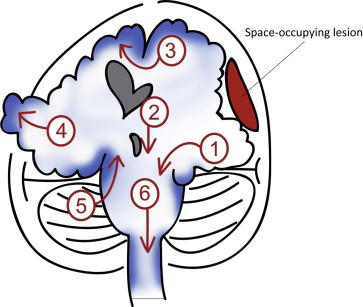 figure 1 coronal view of brain herniations 1 uncal herniation 2 central transtentorial herniation 3 subfalcinecingulate herniation