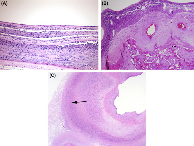 Placental Pathology - an overview | ScienceDirect Topics