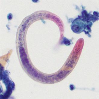 Parasites - ScienceDirect