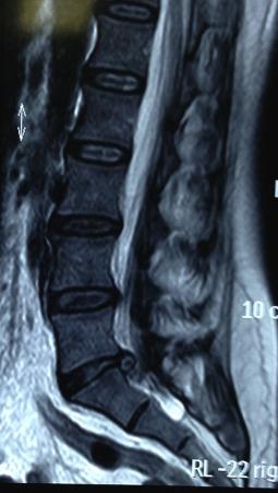 spinal și sala de tratament articular pentru dureri la nivelul articulațiilor și mușchilor picioarelor