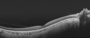 myopia torna a látáshoz