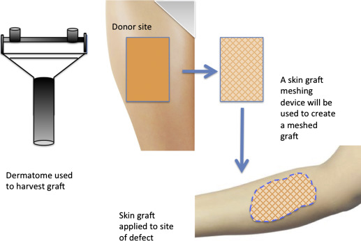 Split Thickness Skin Graft An Overview Sciencedirect Topics