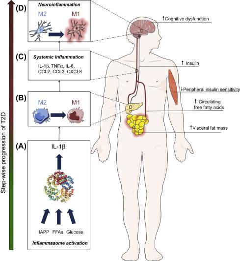 Neuroinflammation Type 2 Diabetes And Dementia Type 2 Diabetes