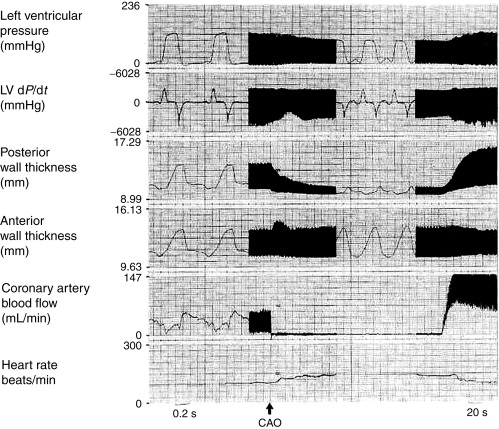 Schematic Diagram Illustrating Arterial Blood Distribution ... on