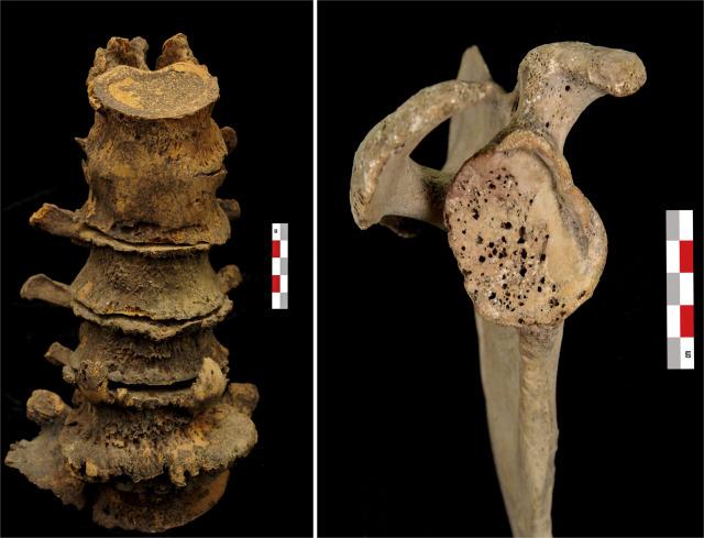 Abnormal Bone Considerations For Documentation Disease