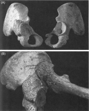 Scapula - an overview | ScienceDirect Topics