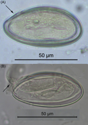 Parasitology - ScienceDirect