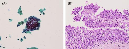 a pinwormok jelentése a biológiában schistosomiasis országokban