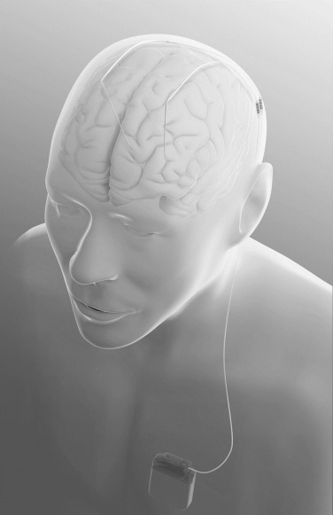 The Role of the Neuropsychologist in Deep Brain Stimulation