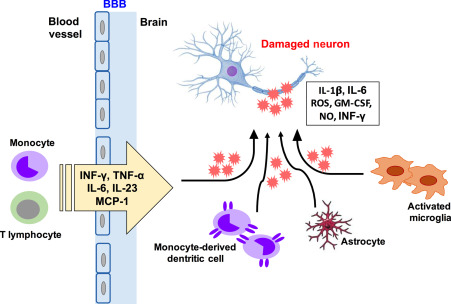Role of Neuroinflammation in the Pathophysiology of Traumatic Brain