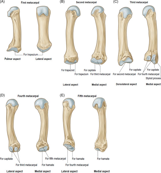 Metacarpal Bone An Overview Sciencedirect Topics