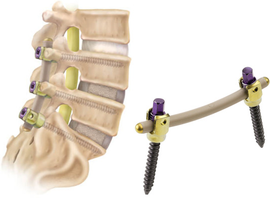 Dynamic Stabilization and Semirigid PEEK Rods for Spinal
