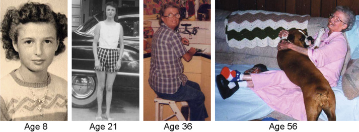 The Biological Basis Of Aging Implications For Medical Genetics