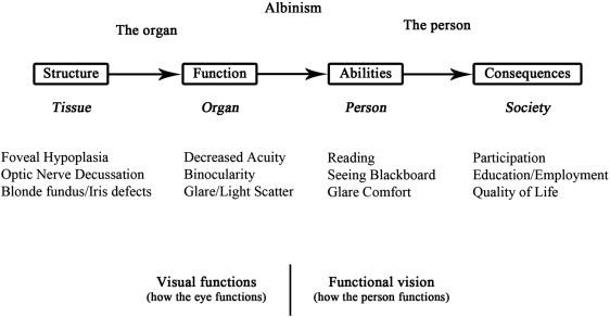 4bc81b0c63c Low-Vision Rehabilitation and Albinism - ScienceDirect