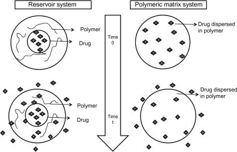 Implantable drug delivery systems: An overview - ScienceDirect