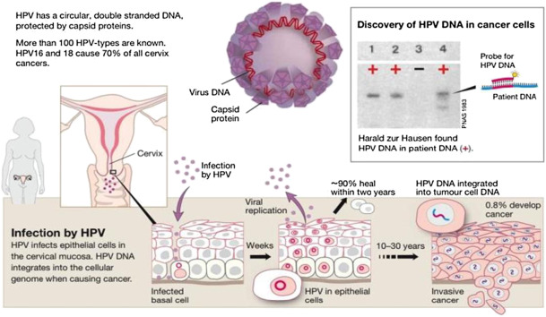hpv high risk dna type 16 detected)