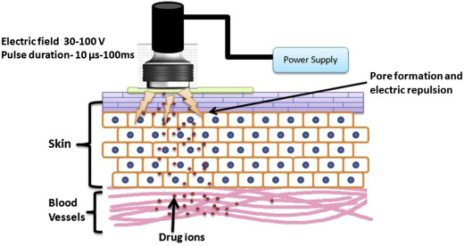 Electroporation An Overview Sciencedirect Topics Electroporation, or electropermeabilization, is a microbiology technique in which an electrical field is electroporation is also highly efficient for the introduction of foreign genes into tissue culture cells. electroporation an overview