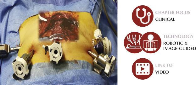 Robotic Radical Prostatectomy For Prostate Cancer Natural