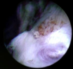 Spermatocele - an overview | ScienceDirect Topics