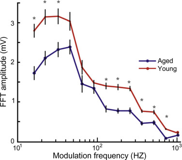 Frequency Following Response - an overview   ScienceDirect Topics