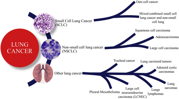 neuroendocrine cancer lung small cell