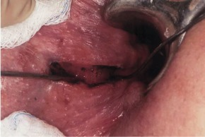 Fistulectomy - an overview | ScienceDirect Topics