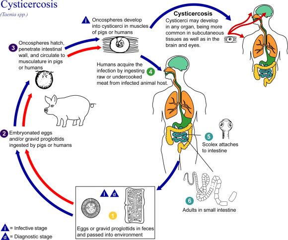 Schistosoma polyarthritis