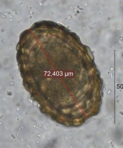 gerincoszlop paraziták