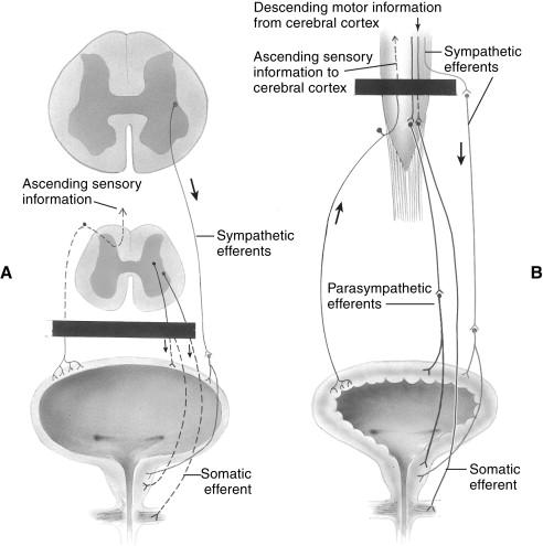 Neurogenic Bladder - an overview | ScienceDirect Topics