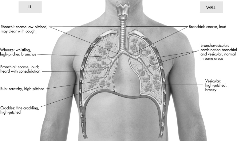 Auscultation - an overview | ScienceDirect Topics