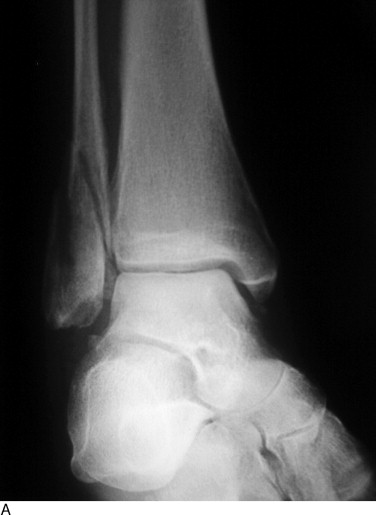 Lateral Malleolar Fracture - an overview | ScienceDirect Topics