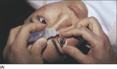 Slit Lamp An Overview Sciencedirect Topics