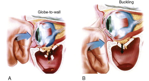 Blowout Fracture - an overview