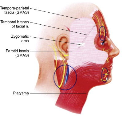 Great Auricular Nerve - an overview | ScienceDirect Topics