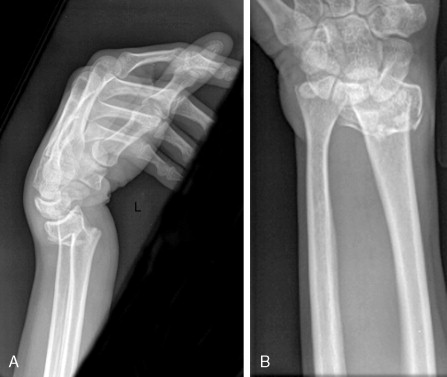 Smith Fracture - an overview | ScienceDirect Topics