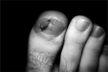 Ingrown Nail An Overview Sciencedirect Topics