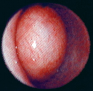 Uterine Fibroid - an overview | ScienceDirect Topics