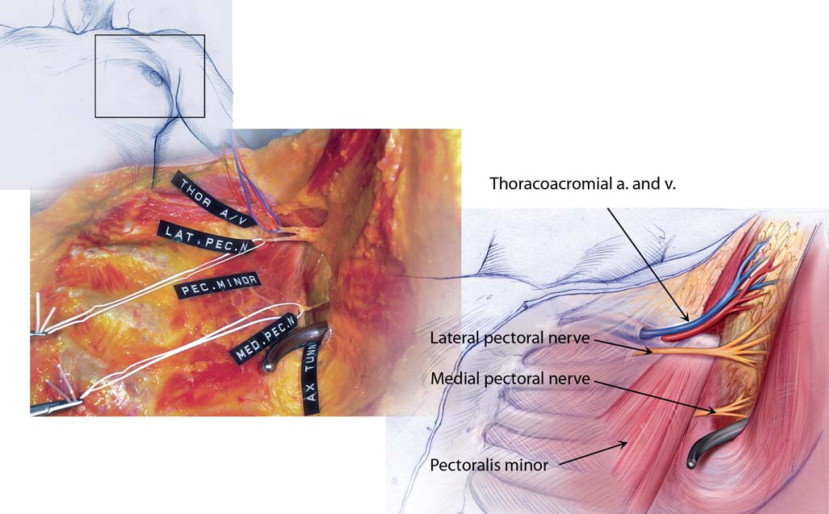 Lateral Pectoral Nerve An Overview Sciencedirect Topics