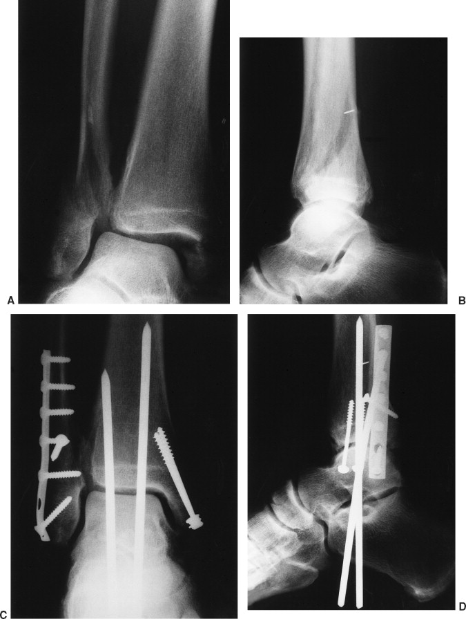 Ankle Fracture - an overview | ScienceDirect Topics
