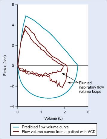 Peak Expiratory Flow An Overview Sciencedirect Topics