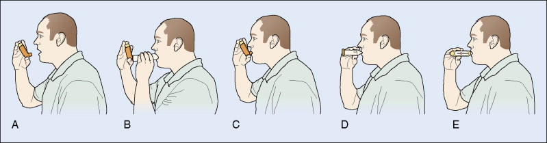 Post-Nasal Drip - an overview | ScienceDirect Topics