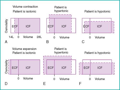 Body Fluid Volume - an overview | ScienceDirect Topics
