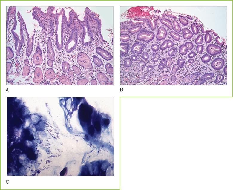 Gastritis - an overview | ScienceDirect Topics
