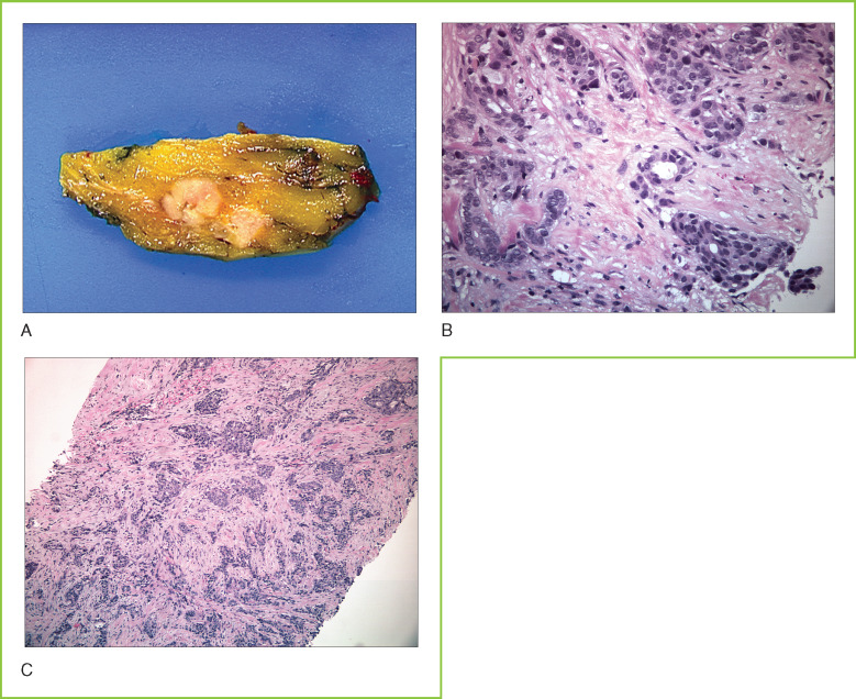 Breast Carcinoma - an overview | ScienceDirect Topics