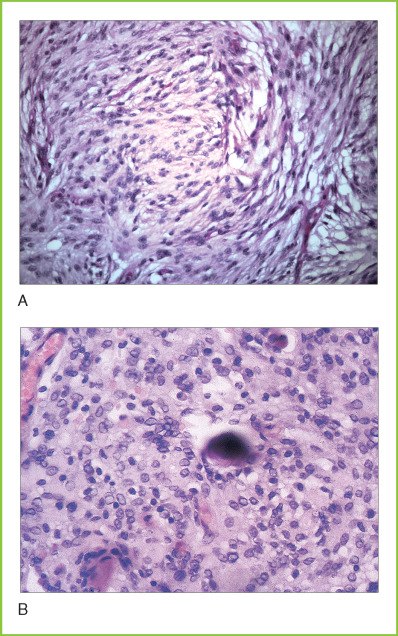 Psammoma Body An Overview Sciencedirect Topics