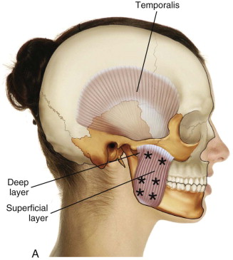 Masseter Muscle - an overview | ScienceDirect Topics